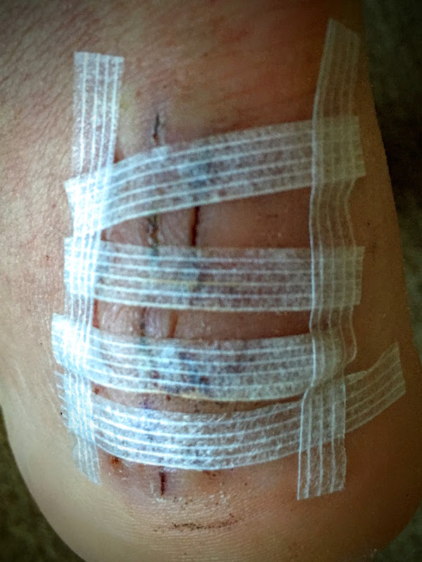 Day 14: Stitches out, rehab on!